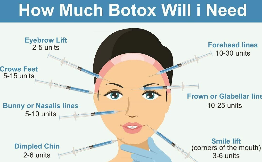 Botox-ready?
